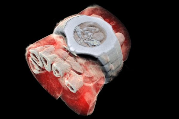 This handout picture released on July 12  2018 by MARS Bioimaging Ltd shows a 3D image of a wrist with a watch showing part of the finger bones in white and soft tissue in red   New Zealand scientists has done the first-ever 3-D  colour X-ray on a human  using a technique promising to improve the field of medical diagnostics  announced Europe s CERN physics lab which contributed technology    AFP PHOTO   MARS Bioimaging Ltd   HO   RESTRICTED TO EDITORIAL USE - MANDATORY CREDIT  AFP PHOTO   MARS Bioimaging Ltd    - NO MARKETING NO ADVERTISING CAMPAIGNS - DISTRIBUTED AS A SERVICE TO CLIENTS